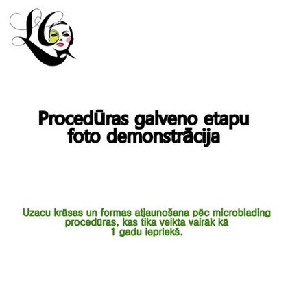 Procedūras galveno etapu foto demonstrācija