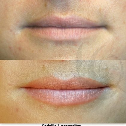 Nude lips, healed, permanent makeup