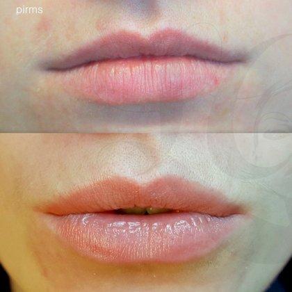 Lips micropigmentation, healed