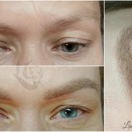 #permanentāsuzacis#healed after 1 treatment
