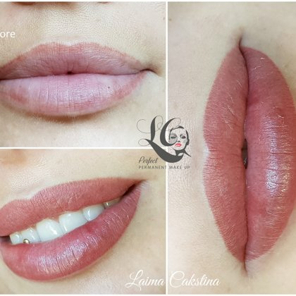 Correction work immediately after procedure, permanent lips