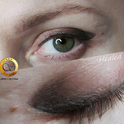 #mikropigmentācija##permanentaisgrims##healed